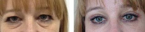Blépharoplastie avant / après