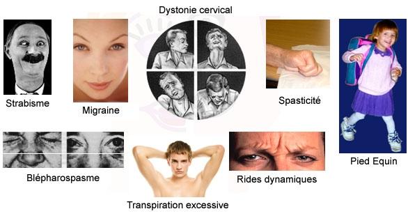 Les différentes applications du Botox