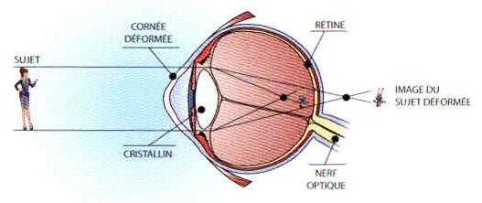 Schéma de l'astigmatisme
