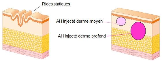 Schéma de la formation des rides statiques