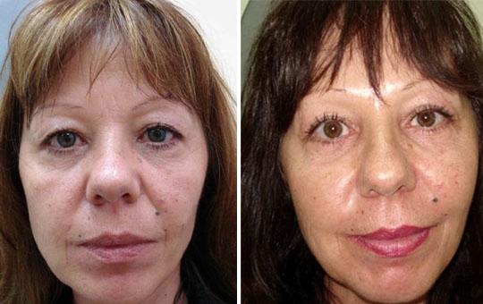 Photo de blépharoplastie avant / après