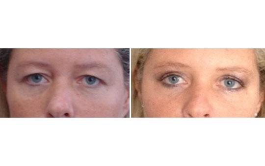 Photo de chirurgie des paupières avant / après