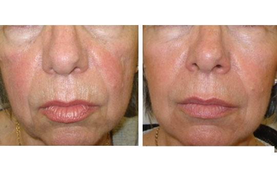 Rajeunissement du visage par injections d'acide hyaluronique